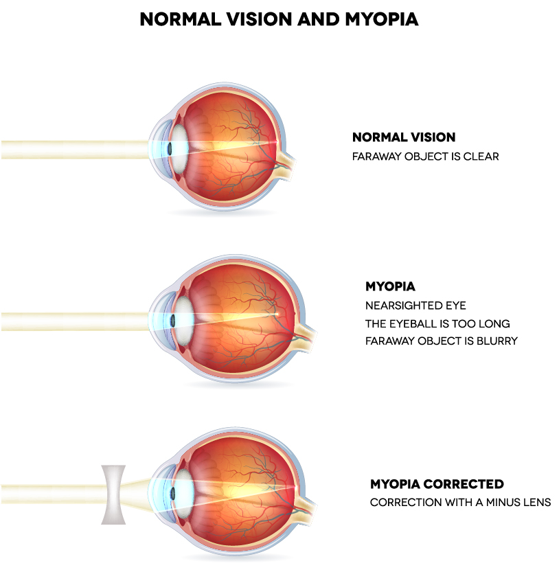 Normal Vision and Myopia illustration - Three drawings of side view of an eye ball, (1) Normal vision - faraway object is clear (2) Myopia Nearsighted eye - the eyeball is too long and faraway object is blurry (3) Myopia Corrected - correction with a minus lens